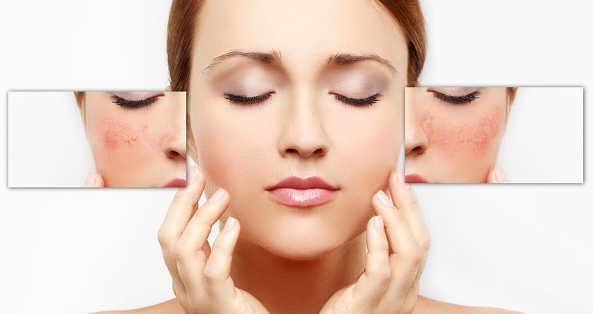 Como eliminar los poros abiertos